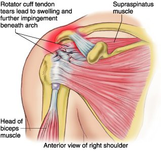 Physiotherapy for rotator cuff tendonitis at Telma Grant, P.T.