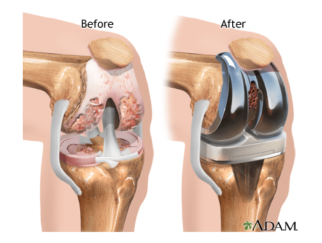 Total knee replacement.